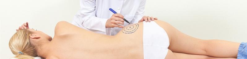 Abdominoplastia com Lipo Preço Campo Magro - Abdominoplastia com Lipo