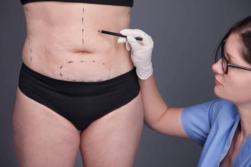 Cirurgia de Dermolipectomia do Abdomen Campina Grande do Sul - Dermolipectomia para Correção de Abdômen