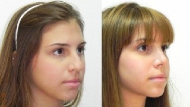 Cirurgia de Rinoplastia Itaperuçu - Cirurgia Plástica para Nariz