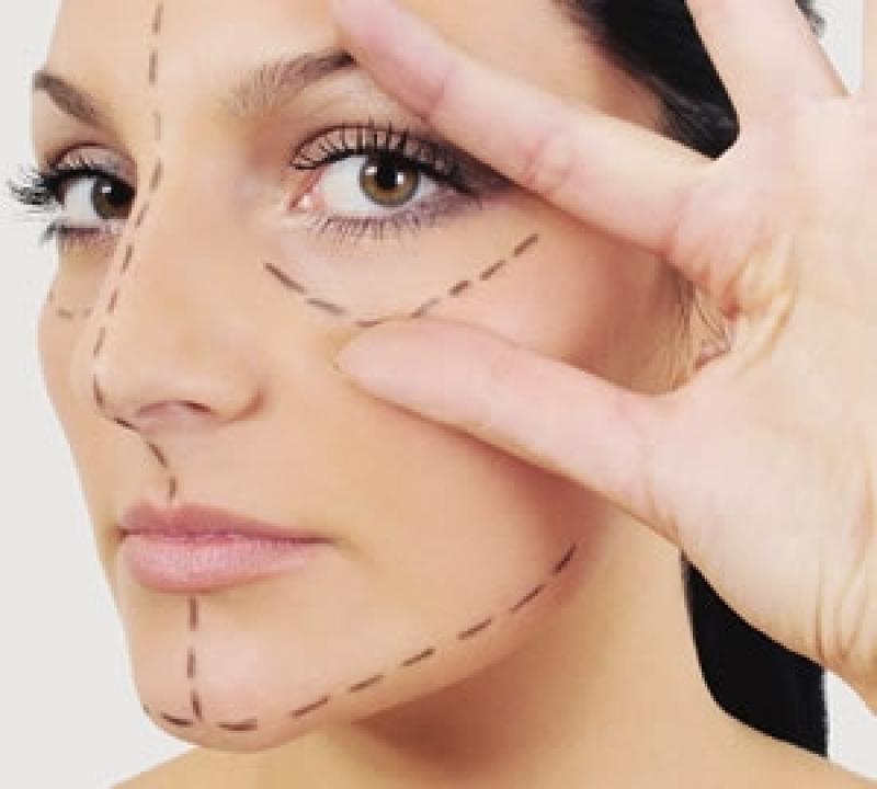 Cirurgia Plástica de Rinoplastia Mandirituba - Clínica de Rinoplastia em Curitiba