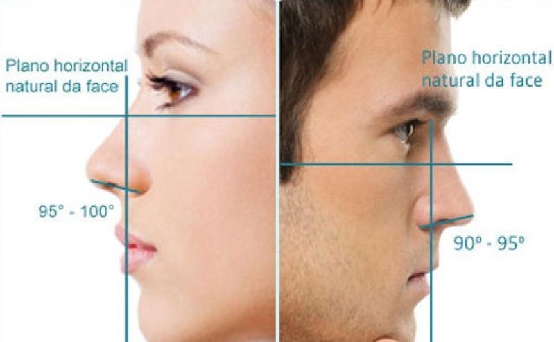 Cirurgia Plástica para Nariz Preço Centro Cívico - Cirurgia Plástica para Nariz