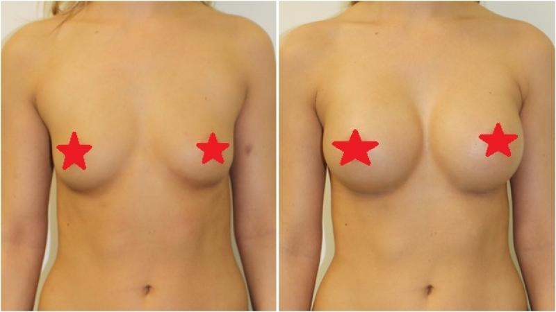 Cirurgias de Próteses Mama Centro Cívico - Implante de Silicone nos Seios