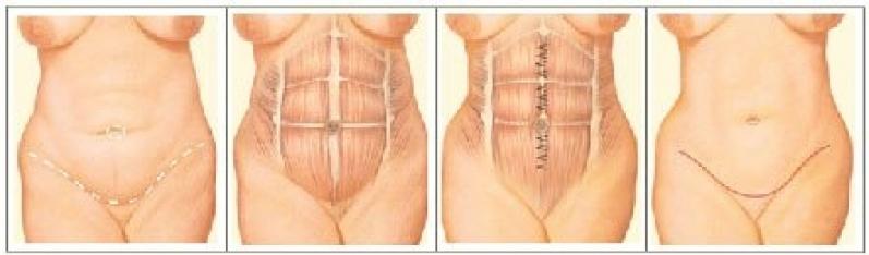 Cirurgias Plástica de Barriga Mercês - Cirurgia Plástica de Nariz