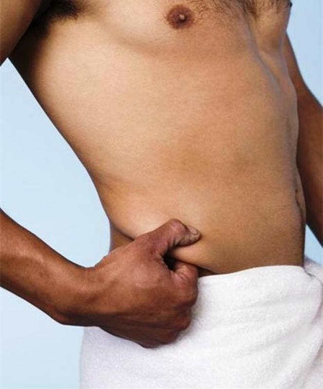 Clínica de Abdominoplastia em Curitiba Onde Encontrar Cerro Azul - Abdominoplastia para Homens