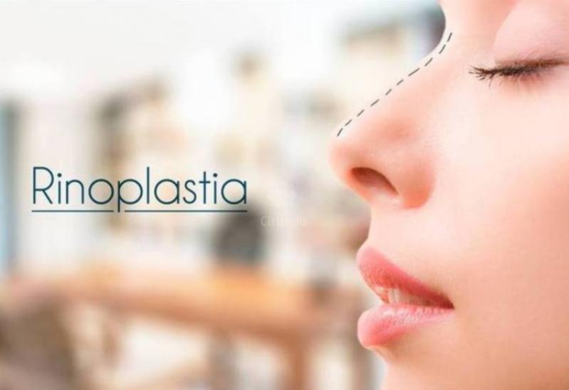 Clínica de Rinoplastia na Metropolitana de Curitiba - Cirurgia Plástica de Rinoplastia