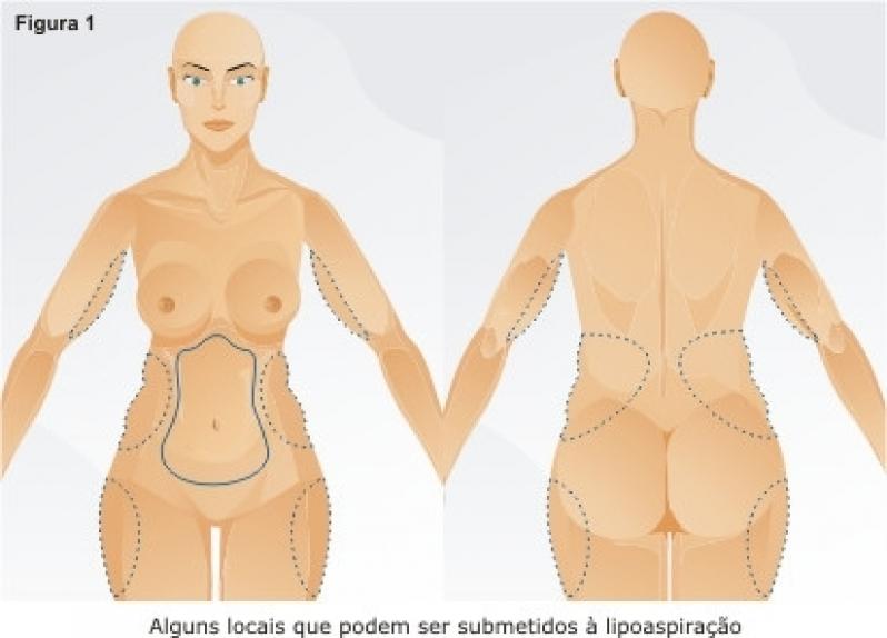 Clínica para Lipoaspiração no Umbigo Piraquara - Lipoaspiração no Joelho
