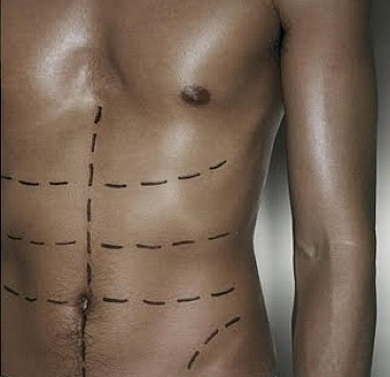 Clínicas para Abdominoplastia Balsa Nova - Centro de Abdominoplastia