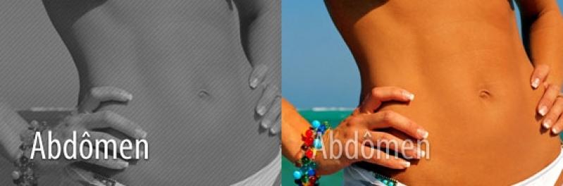 Especialista em Cirurgia de Abdominoplastia Tunas do Paraná - Cirurgia para Abdômen