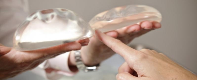 Implante de Silicone nos Seios Preço Agudos do Sul - Implante de Silicone em Curitiba