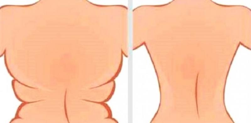 Lipoaspiração em Sobras de Pele Quatro Barras - Lipoaspiração no Joelho