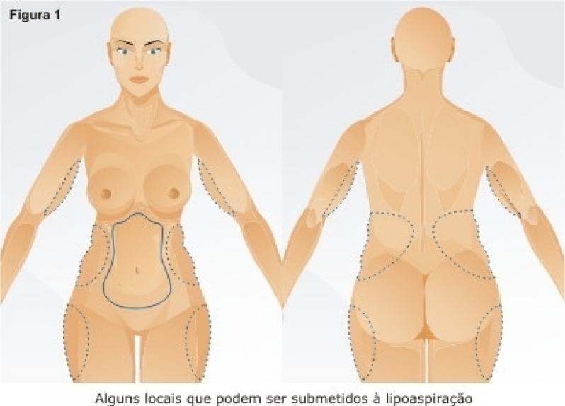 Lipoescultura de Glúteos Quitandinha - Lipoescultura de Face