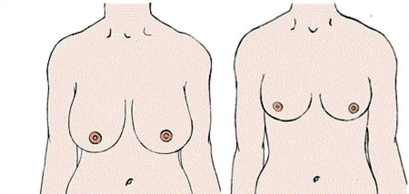 Mamoplastia Redutora em Curitiba - Mamoplastia com Silicone