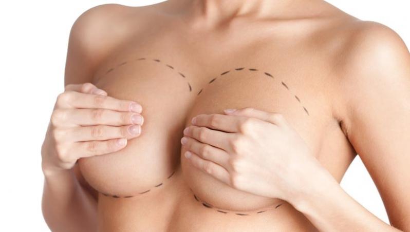 Mastopexia com Implante Onde Fazer Araucária - Mastopexia Levantamento de Mama