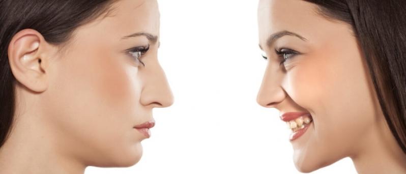 Onde Encontrar Cirurgia Plástica de Rinoplastia Itaperuçu - Cirurgia Plástica para Nariz
