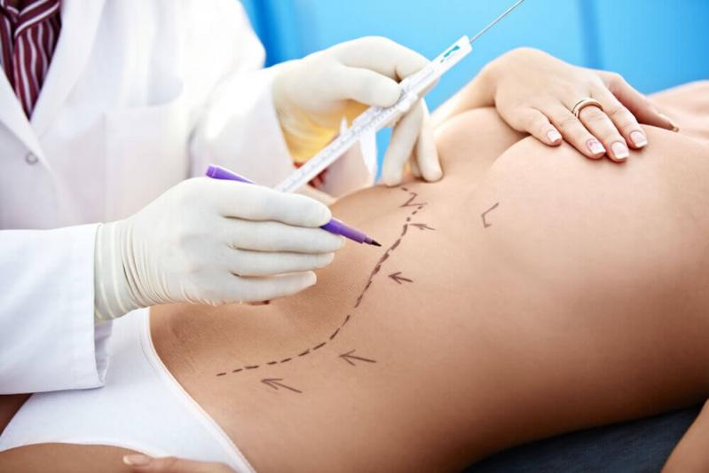 Onde Encontrar Especialista em Abdominoplastia Pinhais - Abdominoplastia para Homens