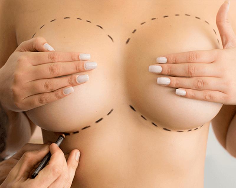 Onde Encontrar Prótese de Silicone Mamária Balsa Nova - Implante de Silicone em Curitiba