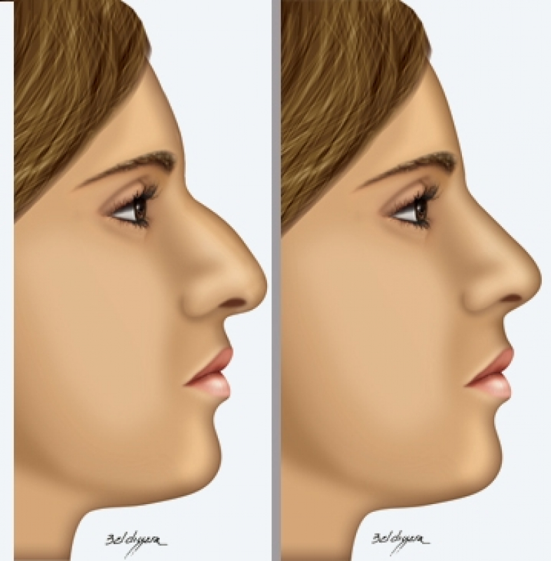 Onde Encontrar Rinoplastia de Aumento Batel - Clínica Estética de Rinoplastia