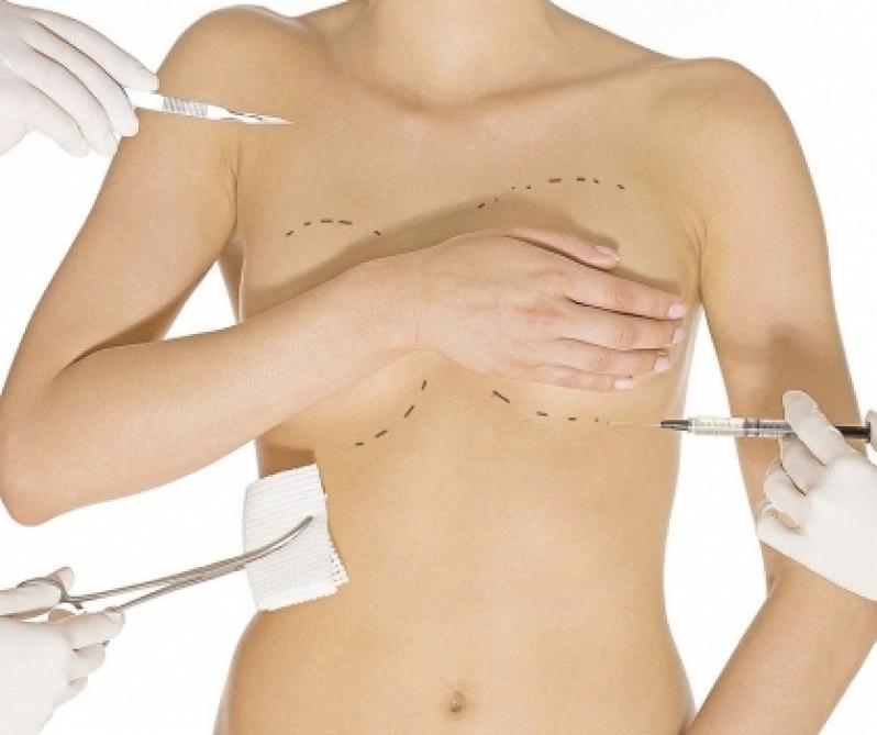 Onde Encontro Clínica de Cirurgia Plástica de Mama Tijucas do Sul - Especialista em Cirurgia Plástica de Rosto