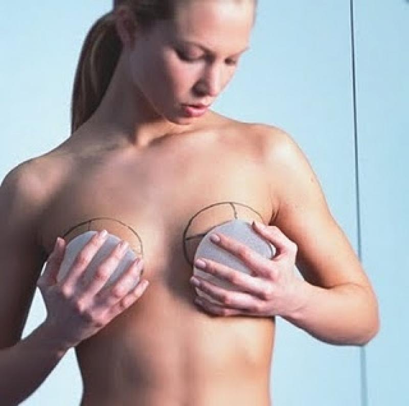 Onde Encontro Plástica de Aumento de Mama Juvevê - Implante de Silicone nos Seios