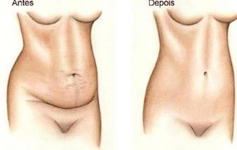 Plástica de Abdominoplastia Champagnat - Cirurgia para Abdômen