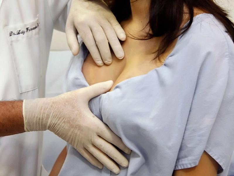 Plástica de Aumento de Mama Preço Champagnat - Implante de Silicone em Curitiba