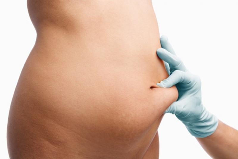 Quanto Custa Cirurgia para Abdômen Ecoville - Clínica de Abdominoplastia em Curitiba