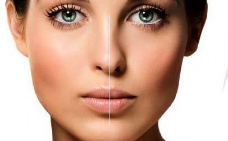 Quanto Custa Cirurgia Plástica de Rinoplastia Lapa - Cirurgia Plástica de Rinoplastia