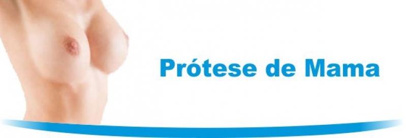 Quanto Custa Prótese de Silicone Quitandinha - Especialista em Prótese de Silicone