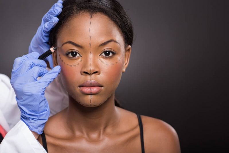 Rinoplastia para Desvio de Septo Preço Tijucas do Sul - Cirurgia de Rinoplastia