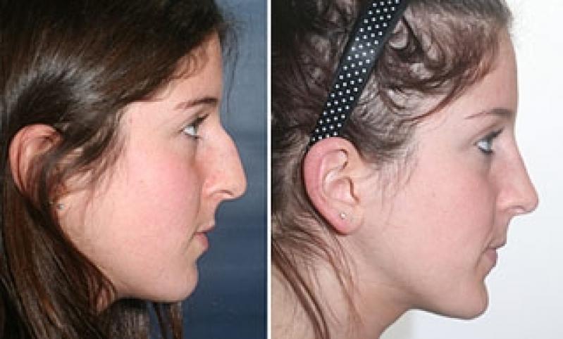Rinoplastia para Desvio de Septo Ecoville - Cirurgia Plástica de Rinoplastia