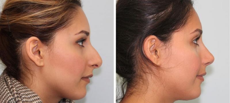 Rinoplastia para Diminuir o Nariz Colombo - Cirurgia de Rinoplastia