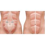 abdominoplastia em homens preço Curitiba