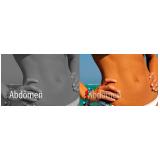 cirurgia de dermolipectomia no abdomen Mercês
