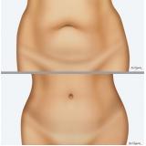 cirurgia para dermolipectomia abdominal feminina Pinhais