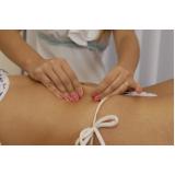cirurgia para dermolipectomia abdominal reparadora Bocaiúva do Sul