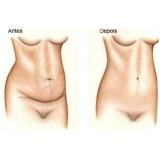 cirurgia para dermolipectomia na barriga Rio Branco do Sul