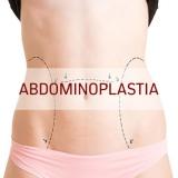 clínica para abdominoplastia para barriga com estrias Lapa