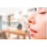 clínica para rinoplastia aberta Contenda