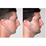 clínica para rinoplastia botox Piraquara