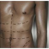 clínica que faz dermolipectomia abdominal reparadora Quitandinha