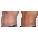 clínica que faz dermolipectomia masculina abdominal Bocaiúva do Sul