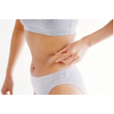 dermolipectomia abdominal em ancora Bigorrilho