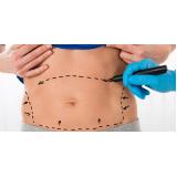 dermolipectomia abdominal reparadora onde fazer Centro Cívico