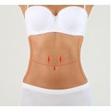 dermolipectomia abdominal