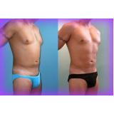dermolipectomia reparadora abdominal Quatro Barras