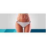lipoaspiração lipomastia preço Quatro Barras