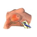 mastopexia levantamento de mama onde faz Campo Magro