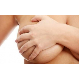 mastopexia levantamento de mama