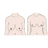 mastopexia redução de mama Champagnat