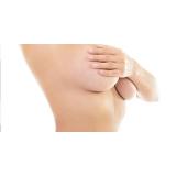 onde coloca prótese de silicone mamária feminina Juvevê